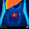 Featured Video – Minimally-Invasive Surgery Options for Liver Cancer and Liver Tumors