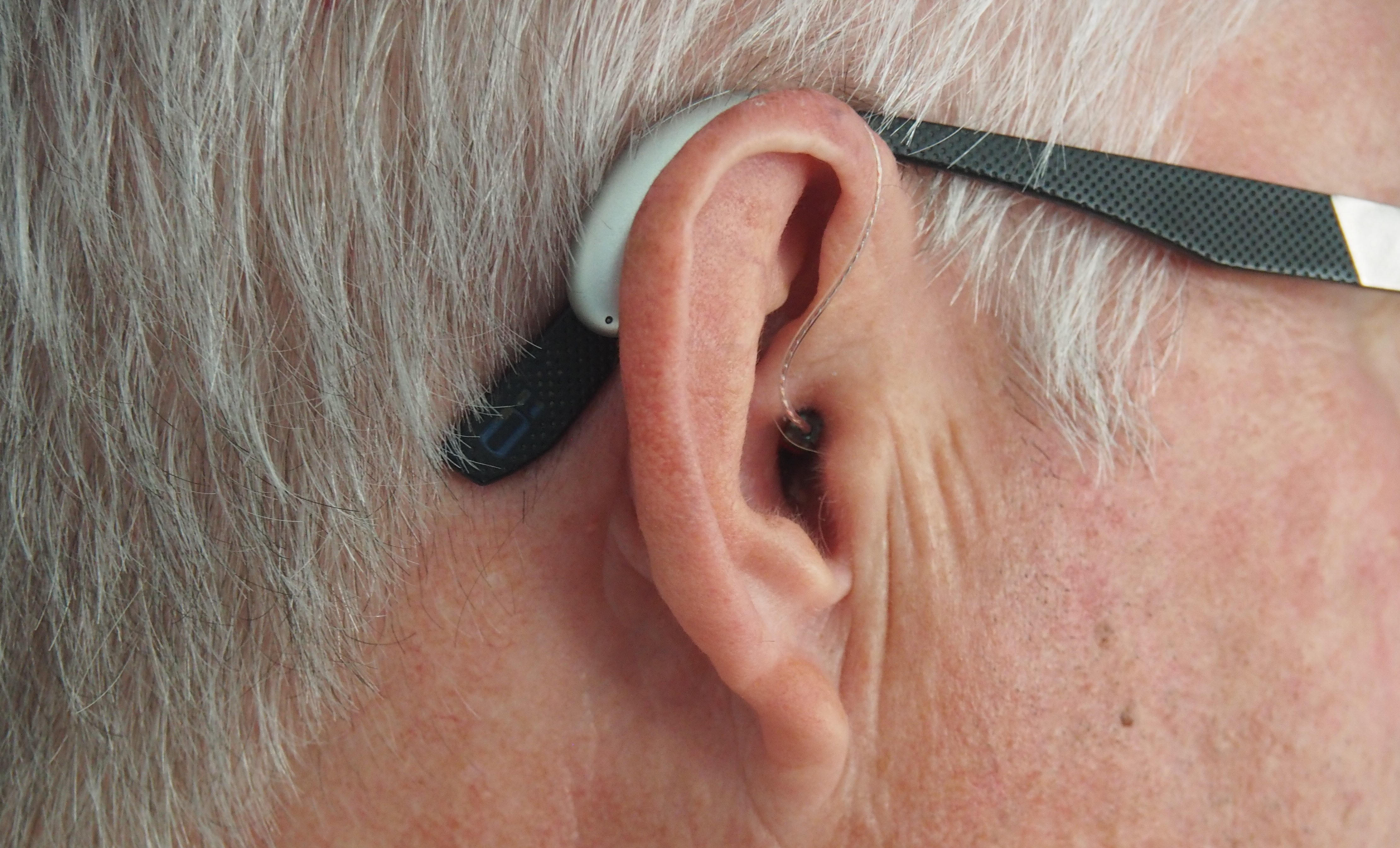audiologists-as-a-therapeutic-service
